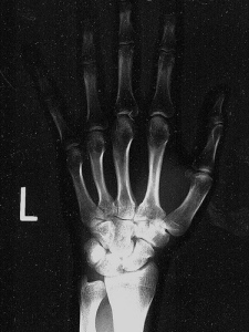 """left hand x-ray."" adamrice, http://www.flickr.com/photos/adamrice/3285073508/"